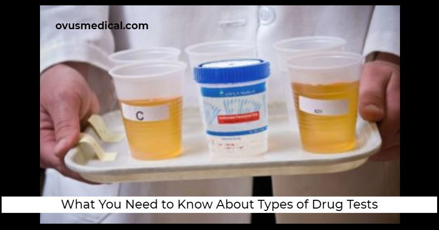 ovus medical Everything You Need to Know About Types of Drug Tests