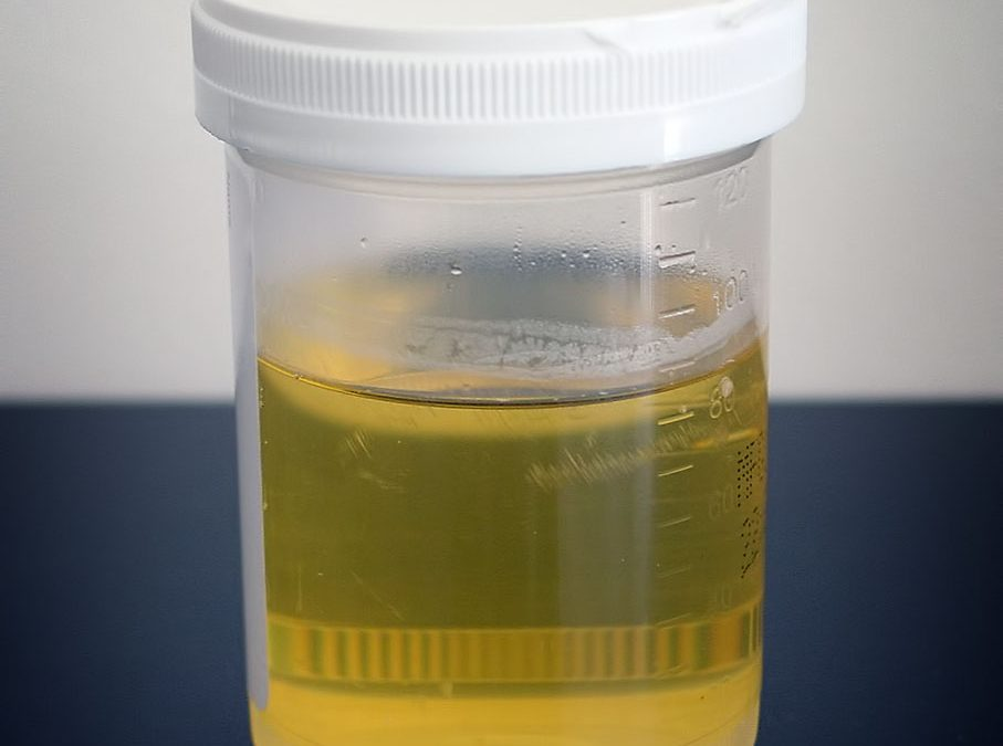 Using fake urine for drug testing: What are the risks?