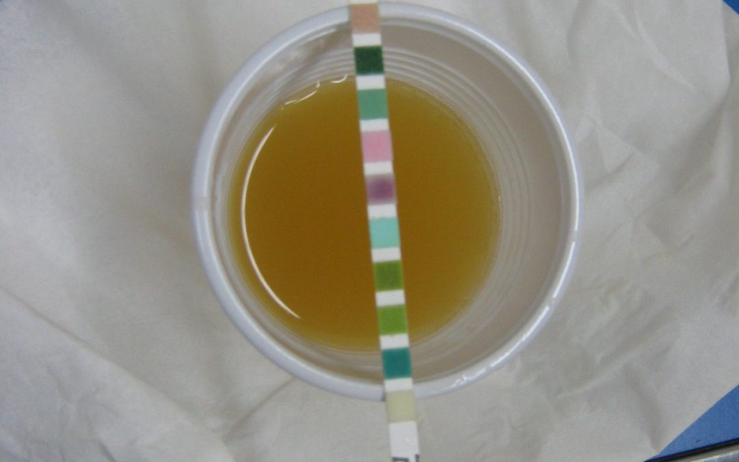 Why Do Drug Treatment Facilities Perform Urine Drug Testing?