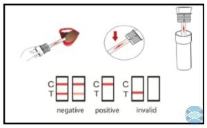 Ovus Medical Oral Swab Instruction
