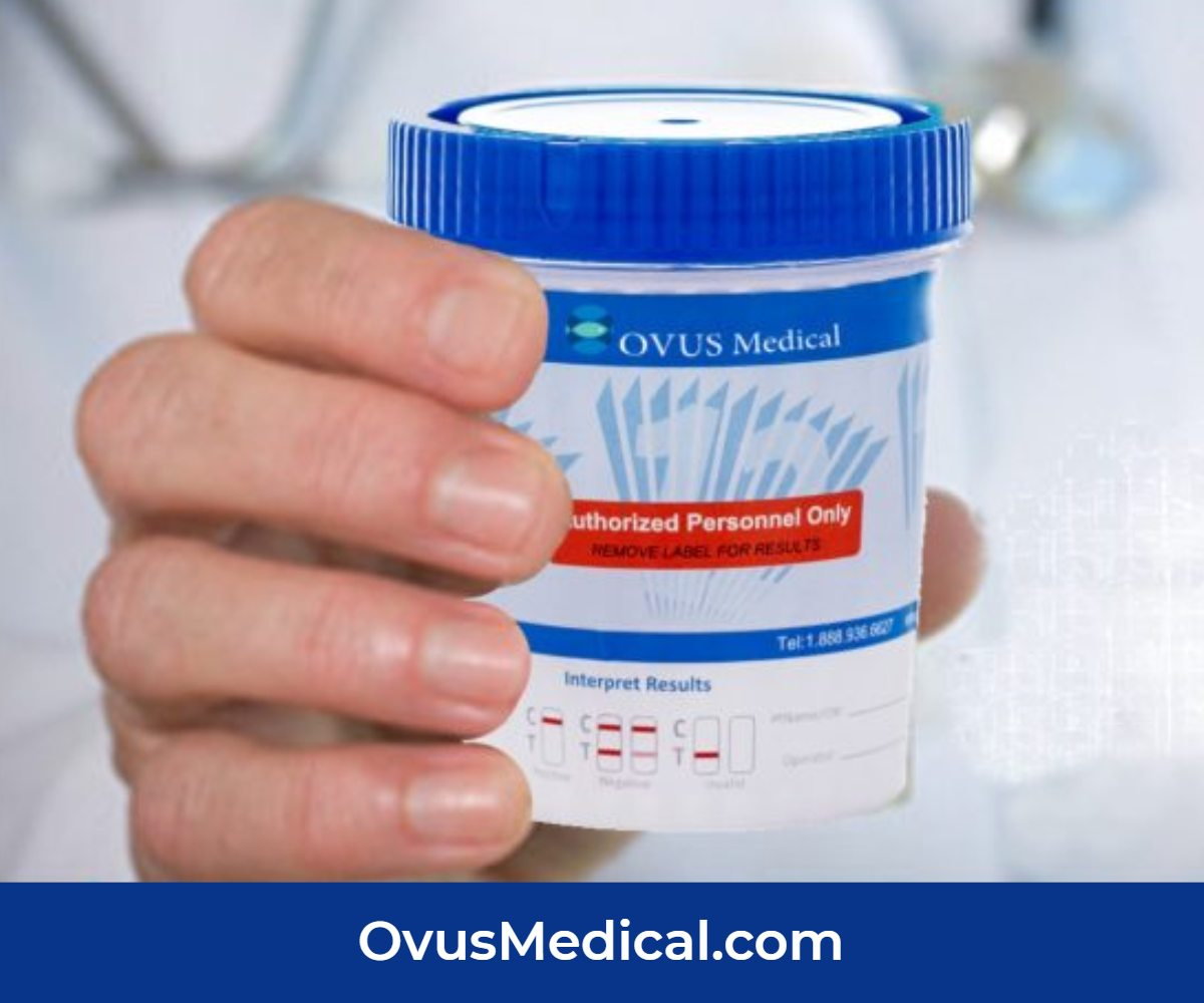 ovus medical urine drug testing kit
