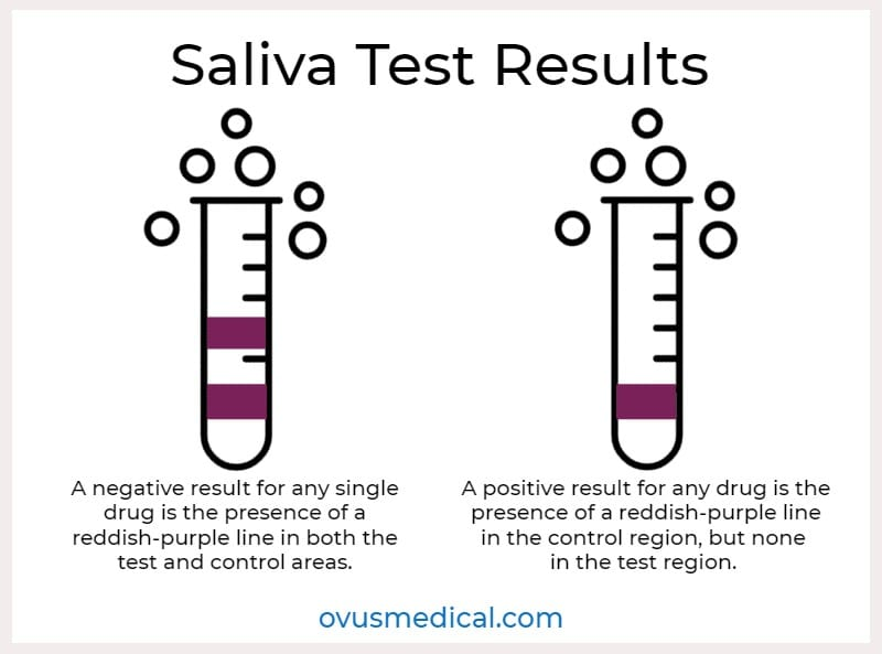 ovus medical Saliva Test Results
