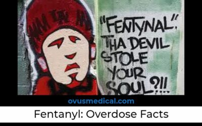 Fentanyl Overdose: 7 Facts Everybody Should Know