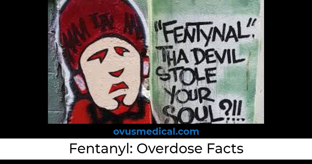 OVUS MEDICAL FENTANYL OVERDOSE