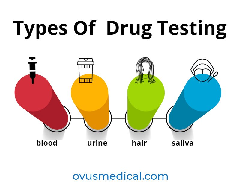 ovus medical types of drug testing CHART