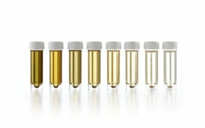 Urine Dilution Test: What are the Implications and Impacts?